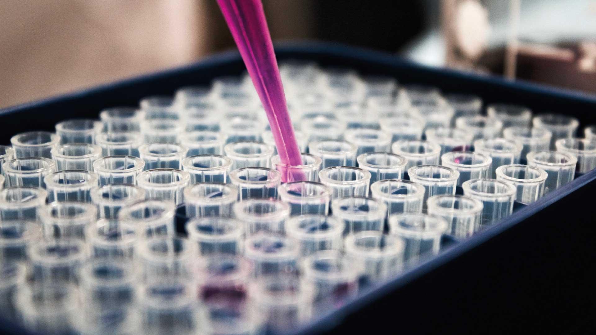 Bioquímica   Laboratorio Ganivet   Laboratorio de Análisis Clínicos   Granada