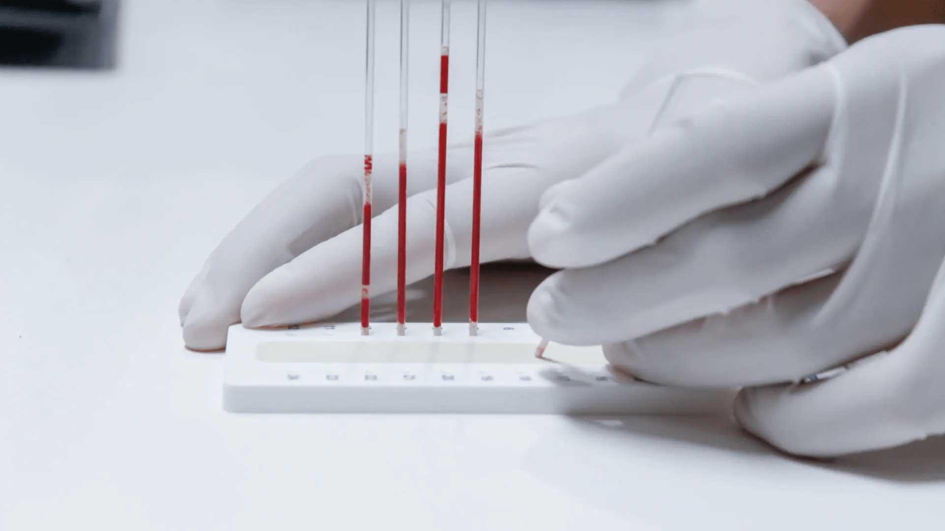 Hematología   Laboratorio Ganivet   Laboratorio de Análisis Clínicos   Granada