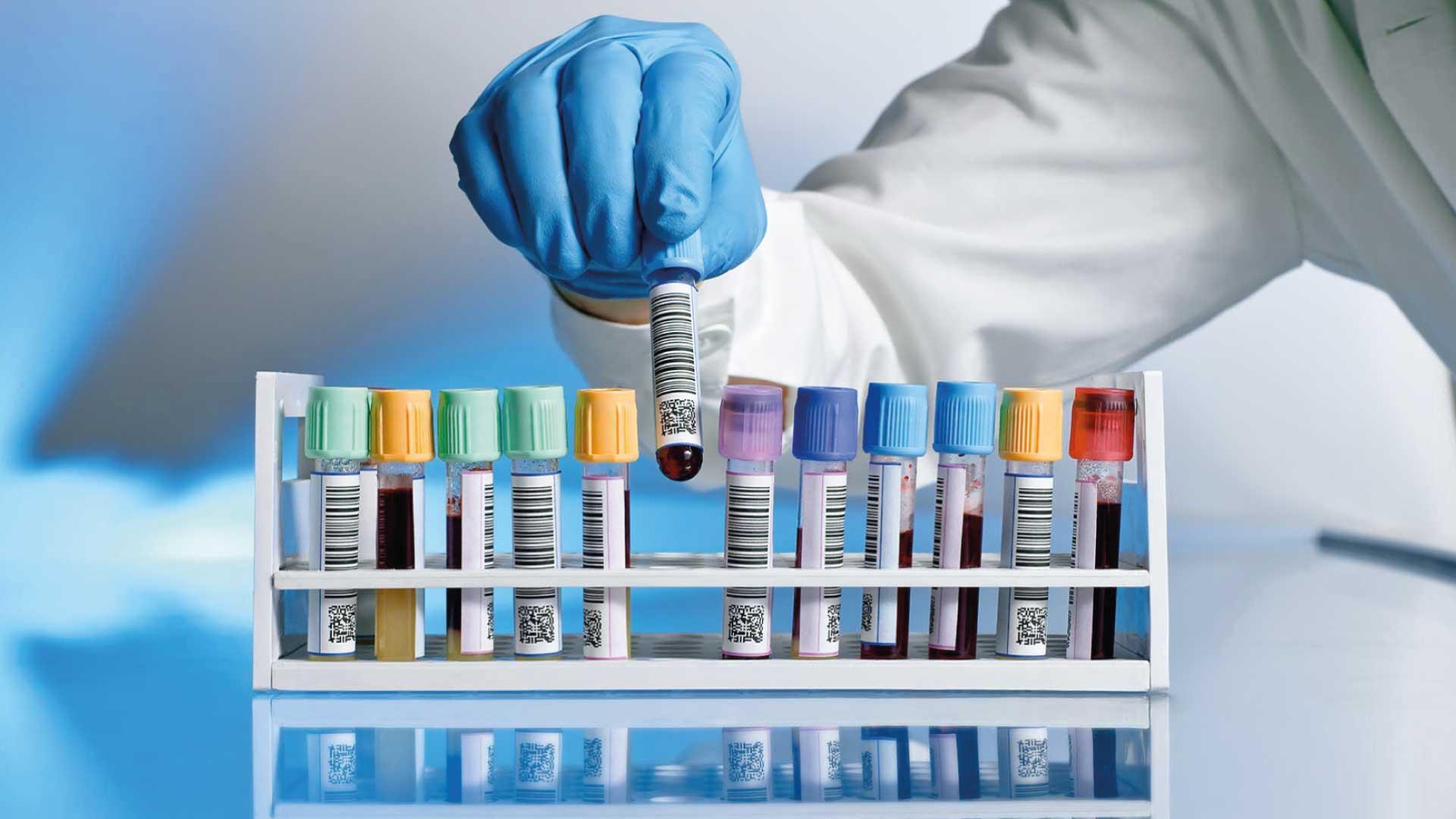 Perfiles analíticos personalizados   Laboratorio Ganivet   Laboratorio de Análisis Clínicos   Granada